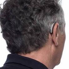 Слуховой аппарат Widex DREAM D50-FA, изображение 2